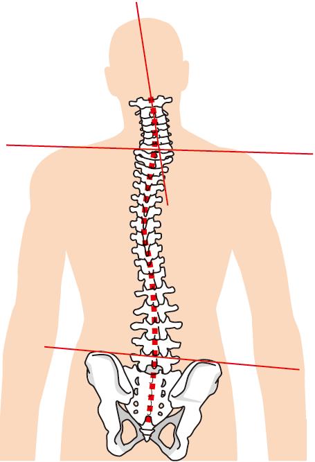 背骨、骨盤のイラスト